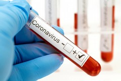 Coronavirus, 4 nuovi casi in Puglia. Nessun decesso